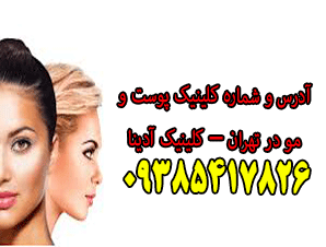 آدرس و شماره کلینیک پوست و مو در تهران - کلینیک آدینا