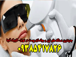 جدیدترین دستگاه های لیزر و جوانسازی پوست در تهران - کلینیک آدینا