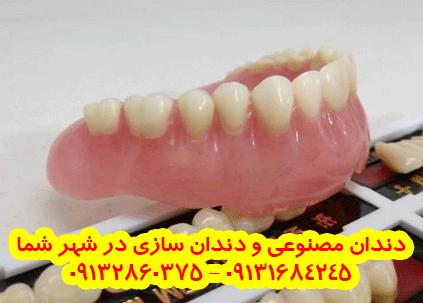 دندان مصنوعی و دندانسازی در فارسان