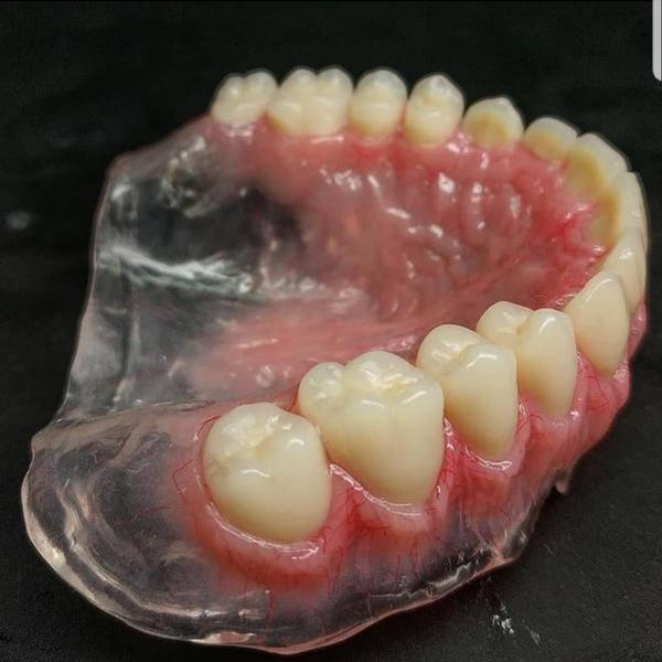 دندان مصنوعی و دندانسازی در دزفول