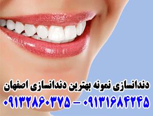 دندان مصنوعی و دندانسازی نمونه بهترین دندان مصنوعی و دندانسازی اصفهان