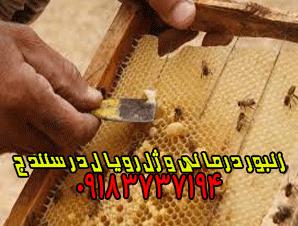 زنبور درمانی و ژل رویال در سنندج